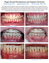 Free Gingival Grafts