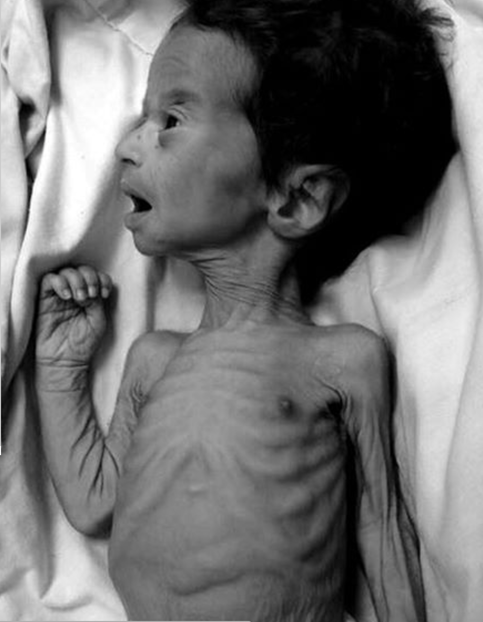 Infants and children in starvation arrive to hospitals in Venezuela every day and most of the time, they cannot be helped because of the lack of treatment and food.    The baby pictured here died, his name was Andrés. His picture went viral last week. Unfortunately, this is the norm.