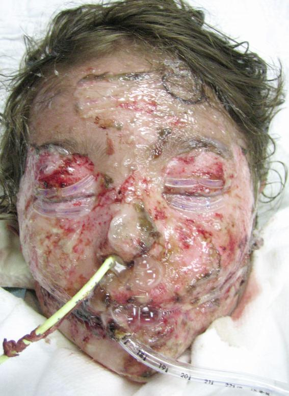 Image taken from www.diseasesforum.com. Notice the sloughing of skin which is typical in SJS.