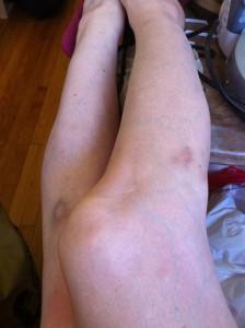 Bruise-y legs!!