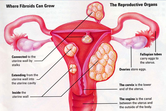 where-fibroids-grow.jpg