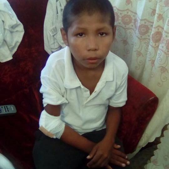 Carlos After Treatment.jpg