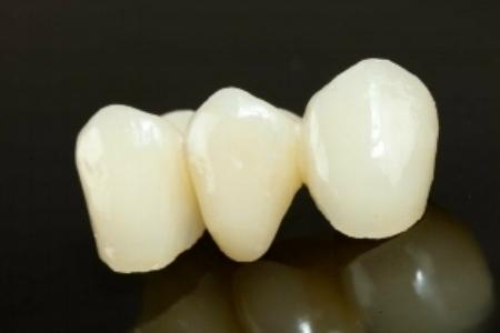 dental bridge 3-min.jpg