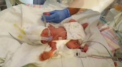 triplets 10.jpg
