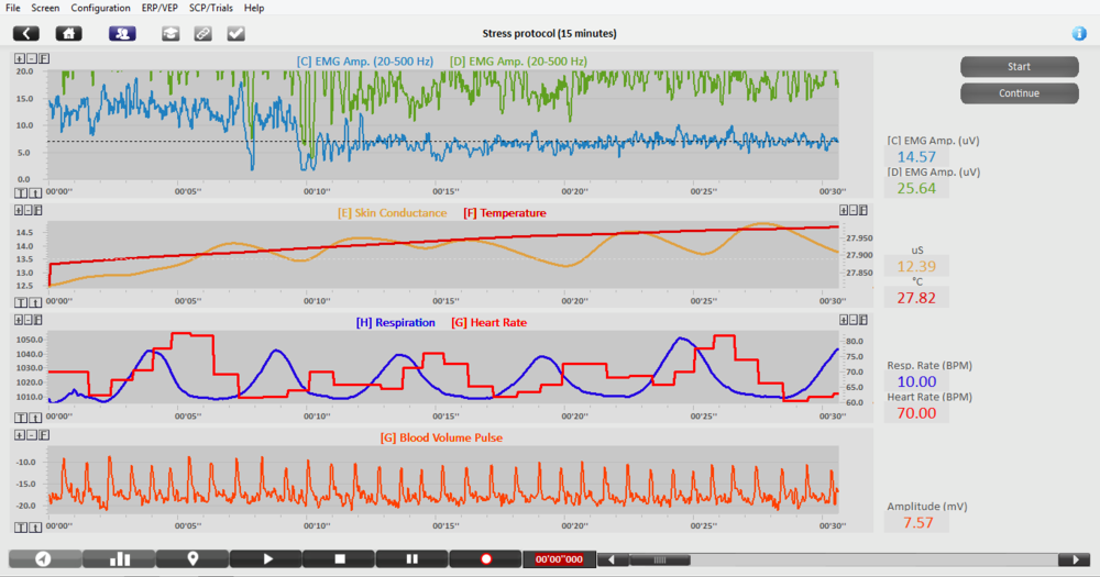 BioTrace software can highlight an athletes response to stress
