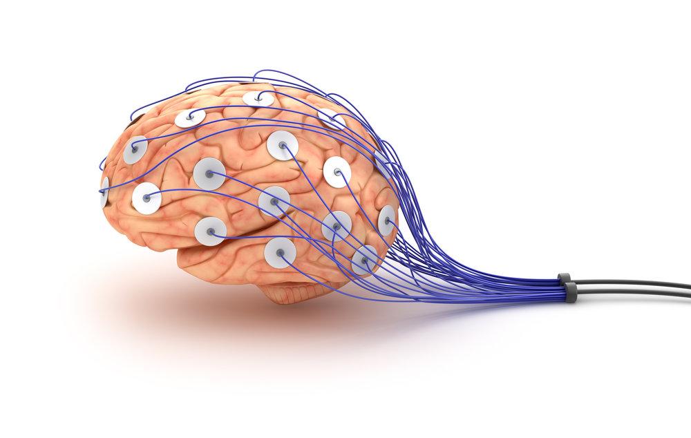 BCIA Neurofeedback Course