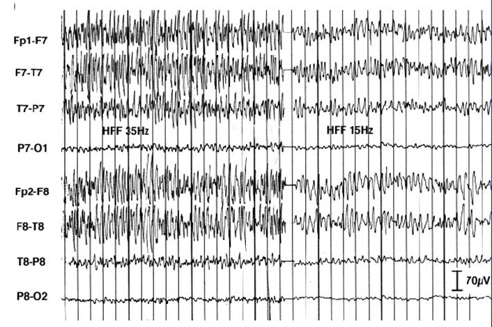 Artefact in EEG due to tensing jaw muscles