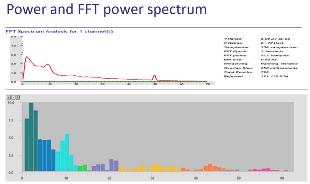 FFT representation of EEG signal