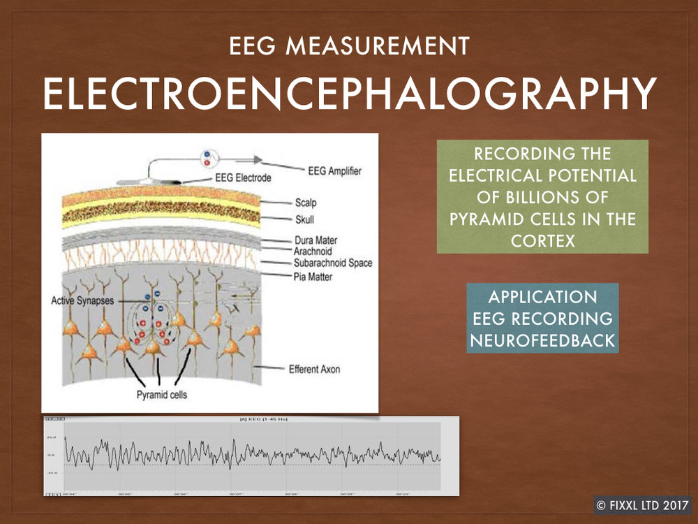 Surface electrodes detect microvolt level signals from the cortex area