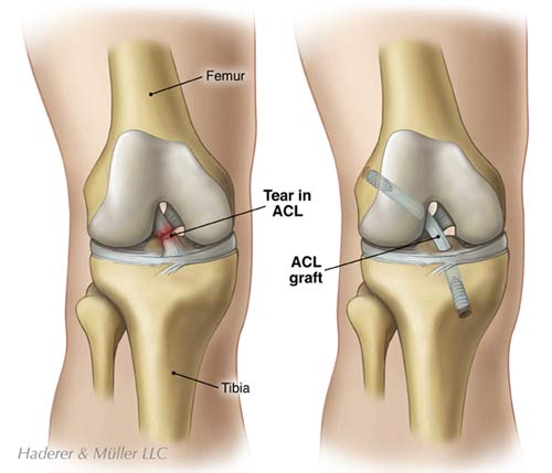 acltear_large.jpeg