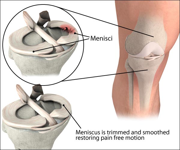 meniscus-tear_large.jpeg