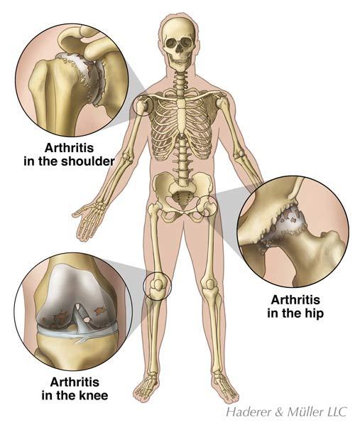 arthritis_large.jpeg