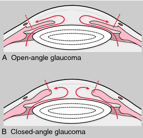 Glaucoma.png