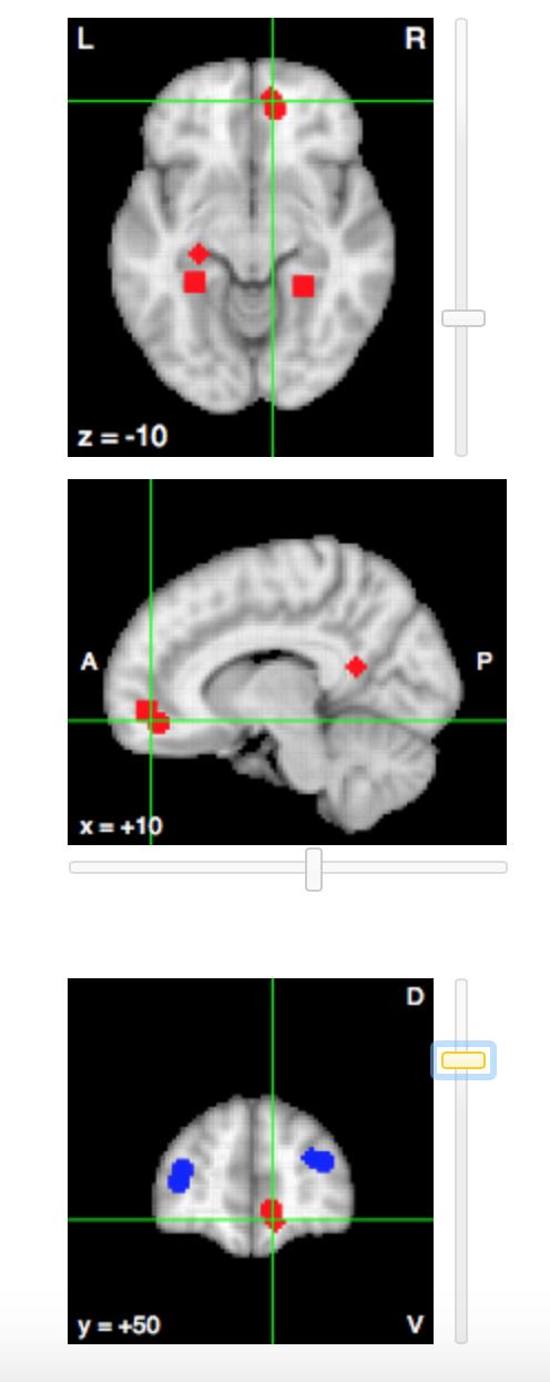 Biol Psychiatry. 2009 Jul 1;66(1):25-32. doi: 10.1016/j.biopsych.2009.03.006. Epub 2009 Apr 28.Acute psychological stress reduces working memory-related activity in the dorsolateral prefrontal cortex. Qin S  1 , Hermans EJ , van Marle HJ , Luo J , Fernández G .