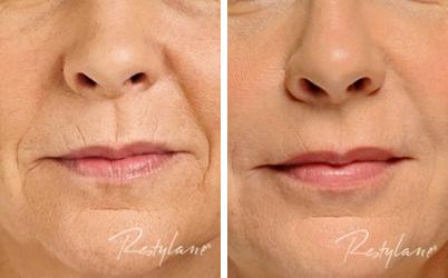 Hudföryngring läppar och nasolabiala linjer