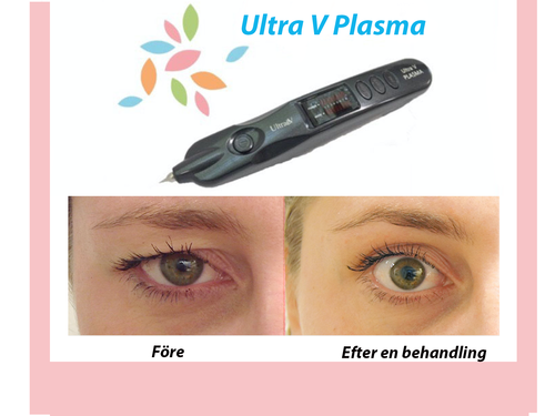 Ultra V Plasma Instagram kopia.png