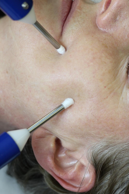 Microcurrent acupuncture facial rejuvenation images 271