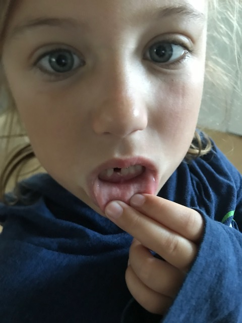 This is an old pic of her first tooth, but she was not willing to let me take a new one.