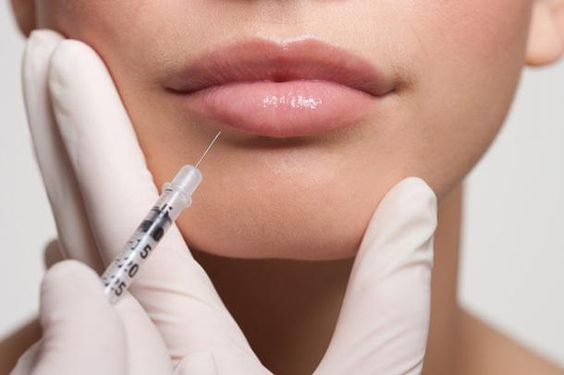 Zoomed in image of the lips and chin of a female model with white gloved hands holding a syringe that is about to inject her lip