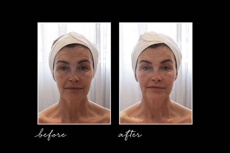 Editor Trudi Brewer with clean skin before and after the Anti-Gravity Facial.