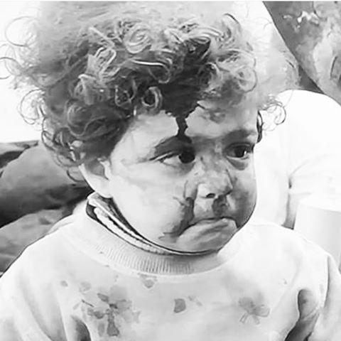 Esta é a Ayah, uma menininha de 3 anos que não conseguia nem mesmo chorar. Não conhece a paz. Conhece a brutalidade, a intolerância, a luta pelo poder, a dor, a perda e com certeza não compreende, assim como a gente o porque disso. E fica a pergunta: porque? Qual o sentido da violência? E qual o sentido da vida? Que dor no peito. Rezando por dias melhores, mais justos e generosos, por mais amor, pela evolução do ser humano, do nosso semelhante. Paz 🙏🏾 #siria #aleppo