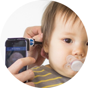 CellScope Smartphone Otoscope
