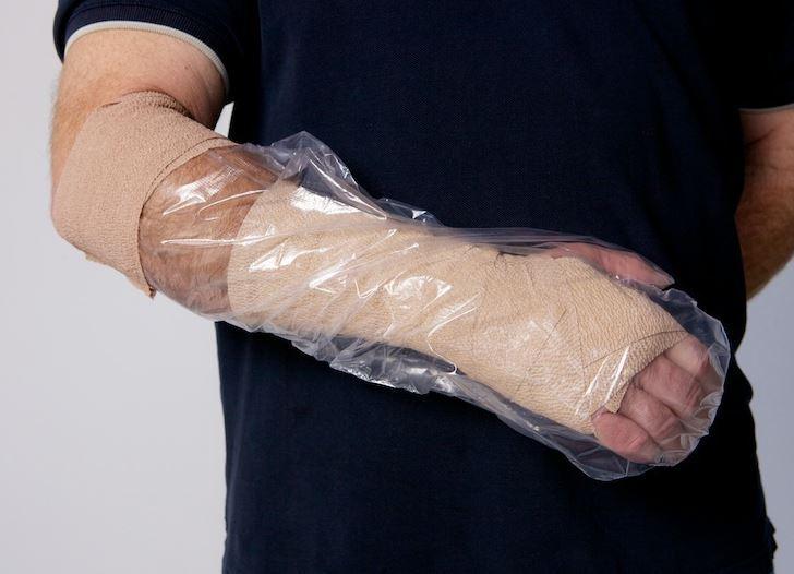 cast-protectr-sports-injury-medical-mart-heartland.JPG