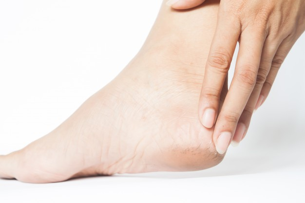 cracked-heels-with-foot-healthy-medical-mart-dry-feet-medical-mart .jpg