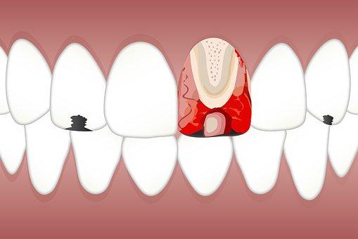 dental-3599745__340.jpg