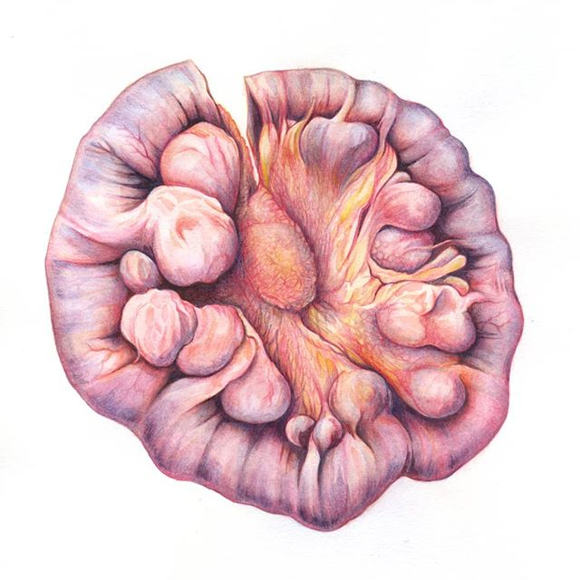 Finally finished this watercolour/watercolour pencil of a jejunal diverticulosis specimen from the Gordon Museum of Pathology. It was difficult to get the colours right as the specimen had lost most of its colour so I had to rely on photographs of jejunal surgery.  #jejunum #diverticulosis #diverticulardisease #pathology #anatomy #medicalart #sciart #medicalillustration