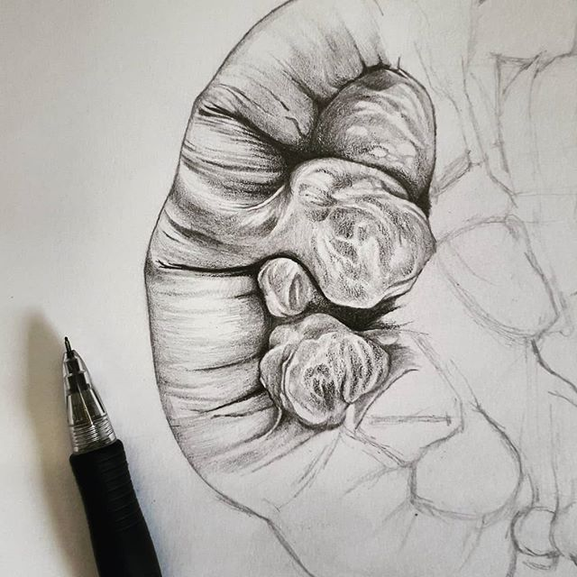 Just started an illustration of jejunal diverticulosis, taken from a pathology specimen at the Gordon Museum of Pathology. It's great to have access to this amazing museum which is the largest medical museum in the UK and holds many interesting pathological specimens. #specimen #pathology #medicalart #anatomy #medicalillustration #jejunum #smallintestine #diverticulardisease #diverticulosis #museum