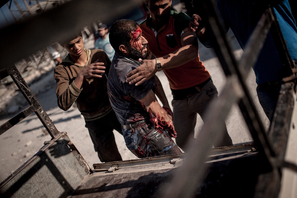A man was injured by a barrel bomb