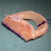Meniscus transplant