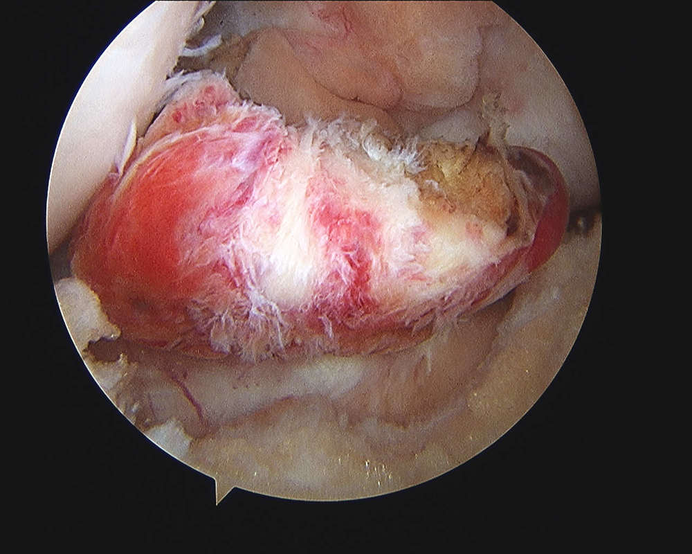 Remnant of torn anterior cruciate