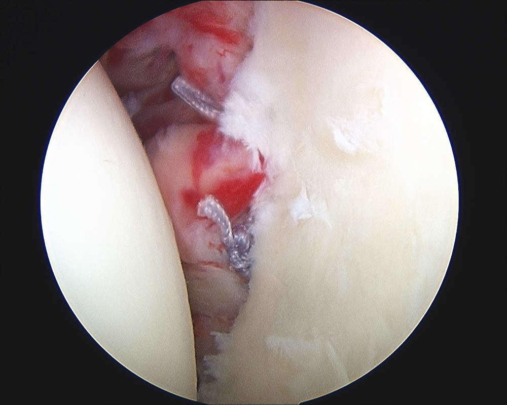 Repaired labral tear after shoulder dislocation