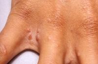 scabies-rash-pictures-3.jpg