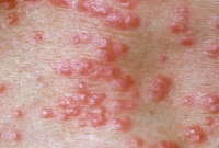 princ_rm_photo_of_scabies_skin_infection.jpg