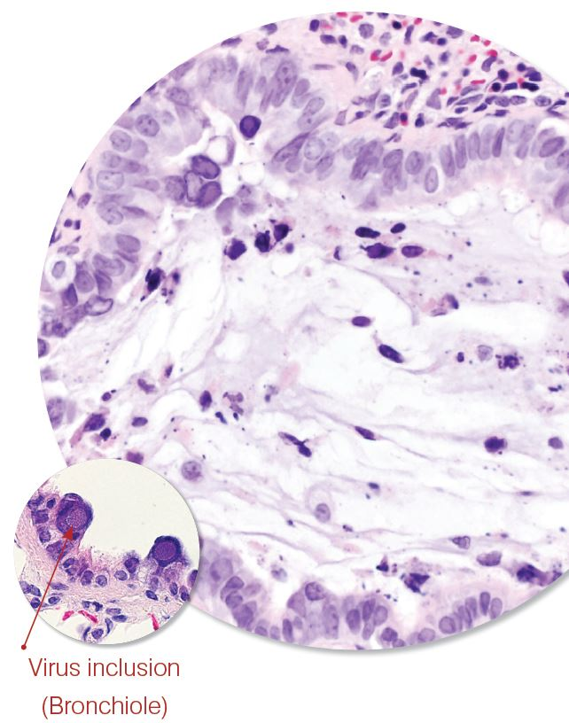 Rat Polyoma virus 2 diagnosis.JPG