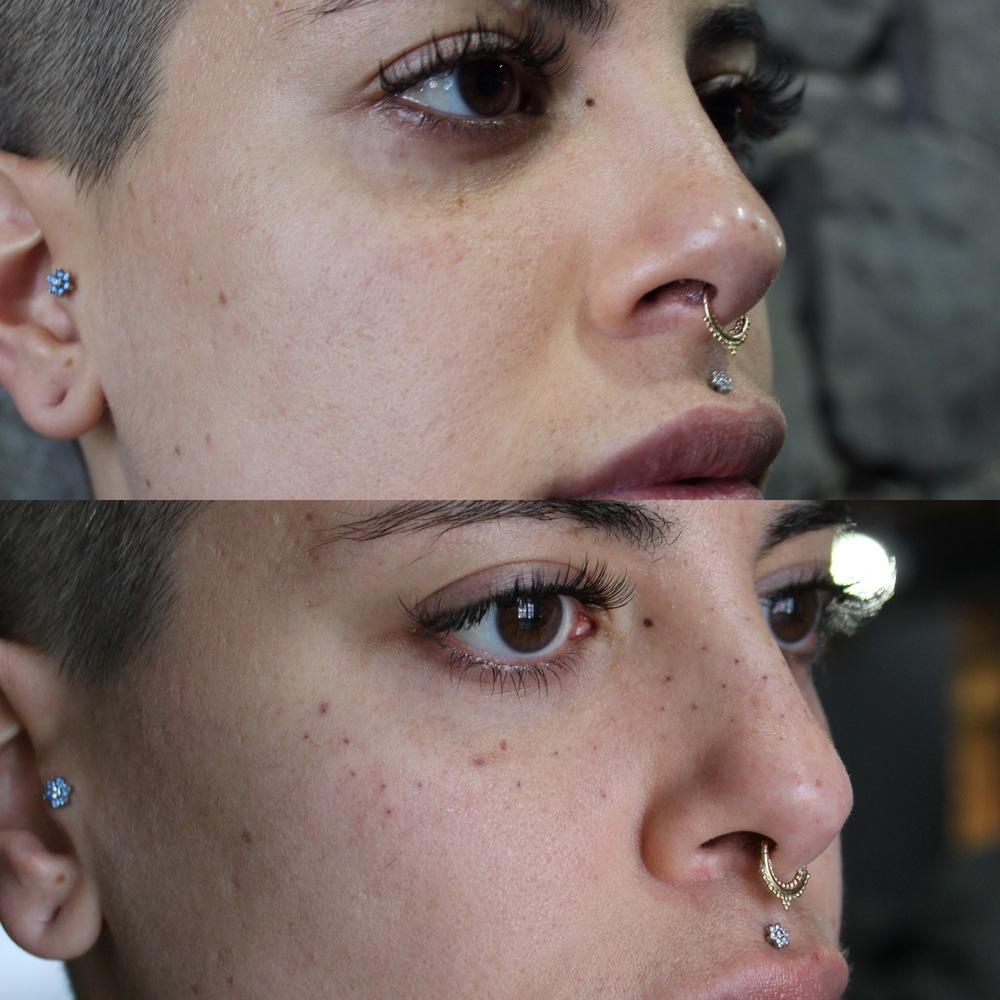 ambre-freckles.JPG