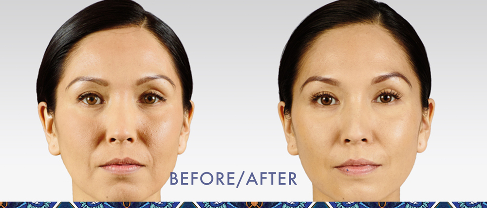 Juvederm reduce wrinkles injectible gel look younger Orlando before after