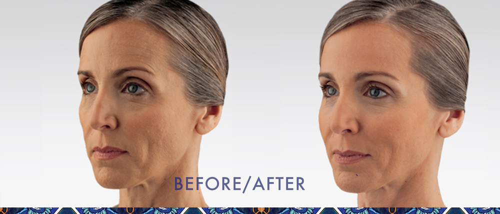 Juvederm reduce wrinkles injectible gel look younger Orlando