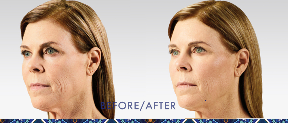 Juvederm reduce wrinkles injectible gel look younger Resoluna Winter Park