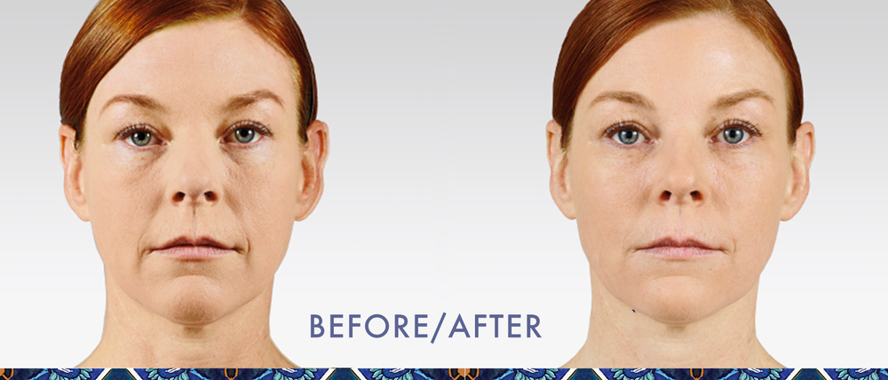Juvederm reduce wrinkles injectable gel look younger Orlando Disney Area