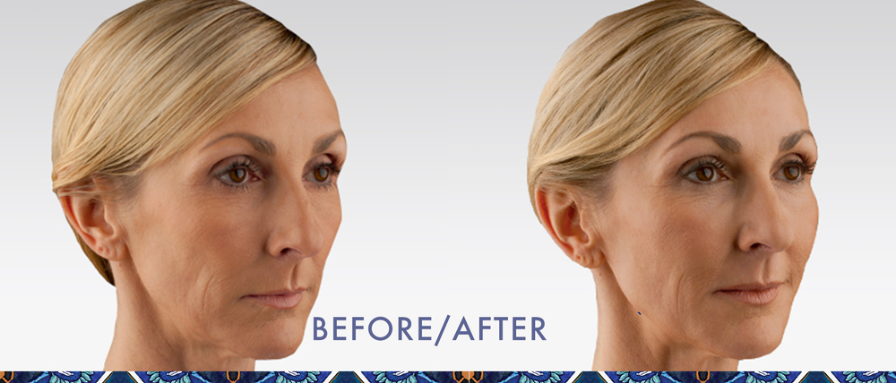 Juvederm reduce wrinkles injectable gel look younger Orlando