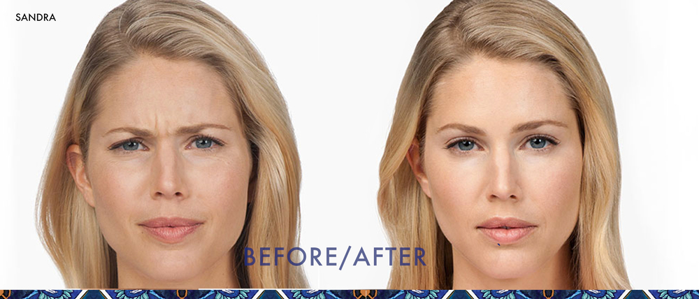 Botox before and after anti-aging skincare orlando