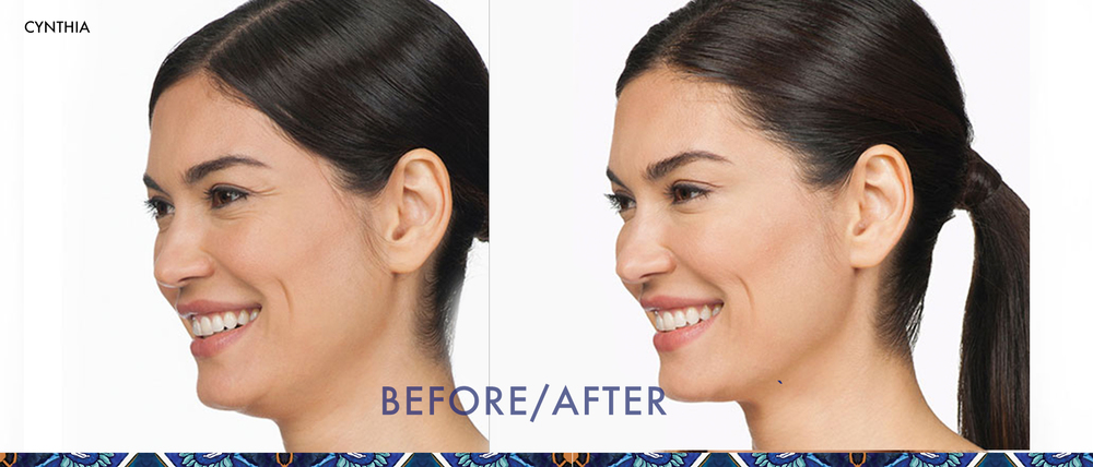 Botox before and after Baldwin Park, Orlando anti-aging skincare