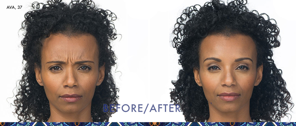 Botox before and after in baldwin park, orlando, anti-aging skincare