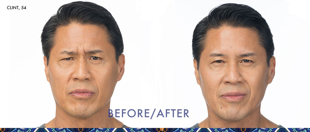 Botox before and after in baldwin park, orlando anti-aging skincare
