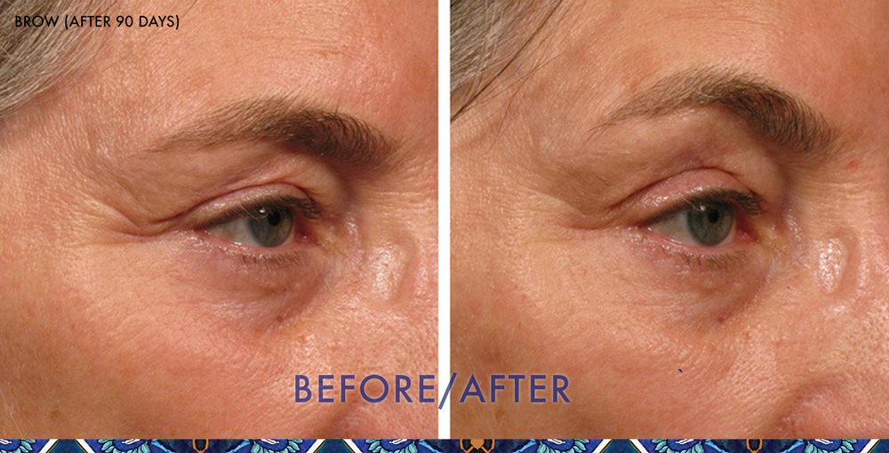 ultherapy eyebrow lift ResouLuna Orlando Winter Park FL Baldwin Park