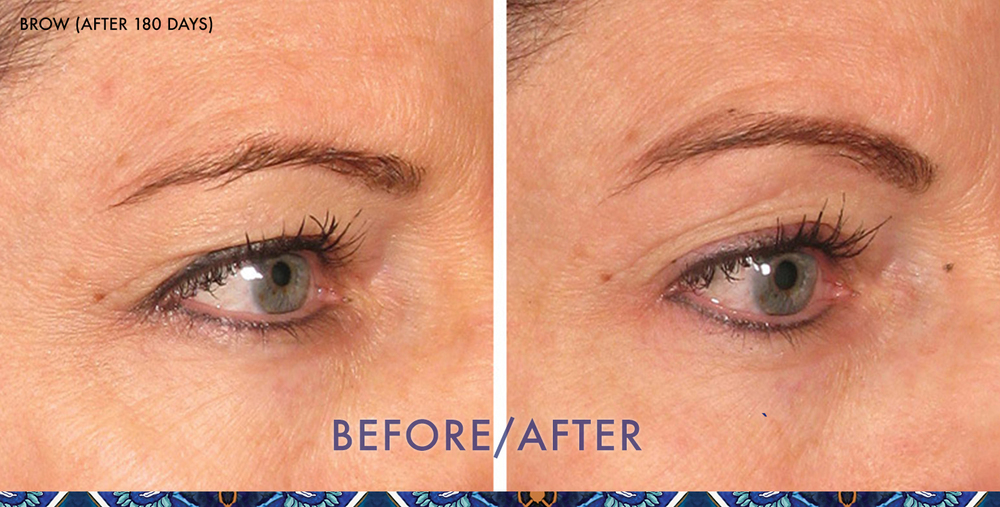 ultherapy eyebrow lift ResouLuna Orlando Winter Park FL